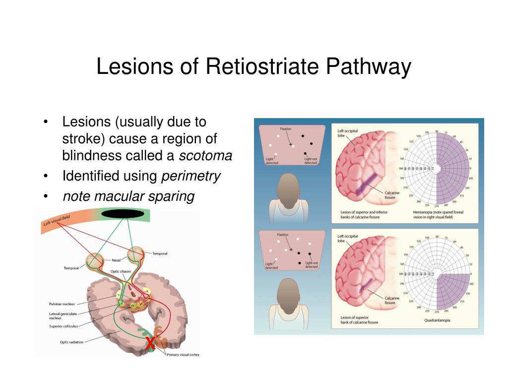 Lesions of Retiostriate Pathway