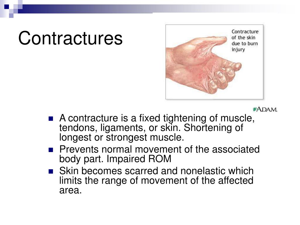 Contractures