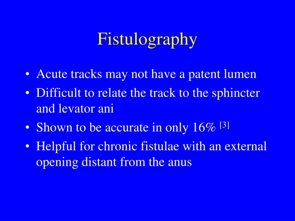 Fistulography