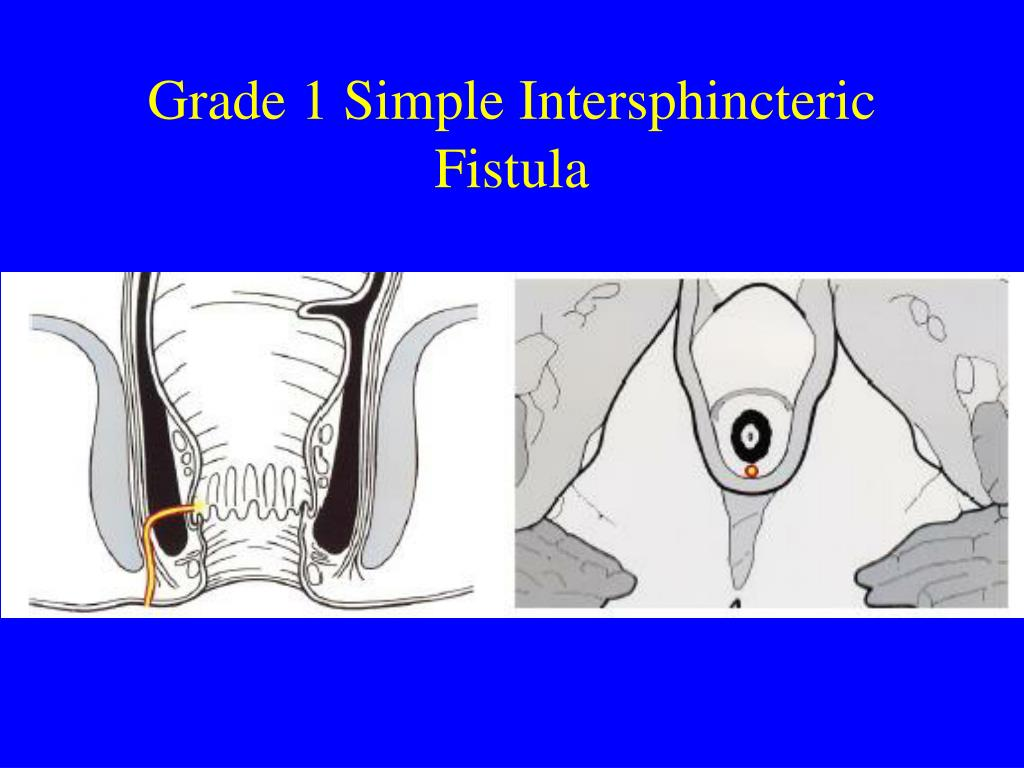 Grade 1 Simple Intersphincteric Fistula