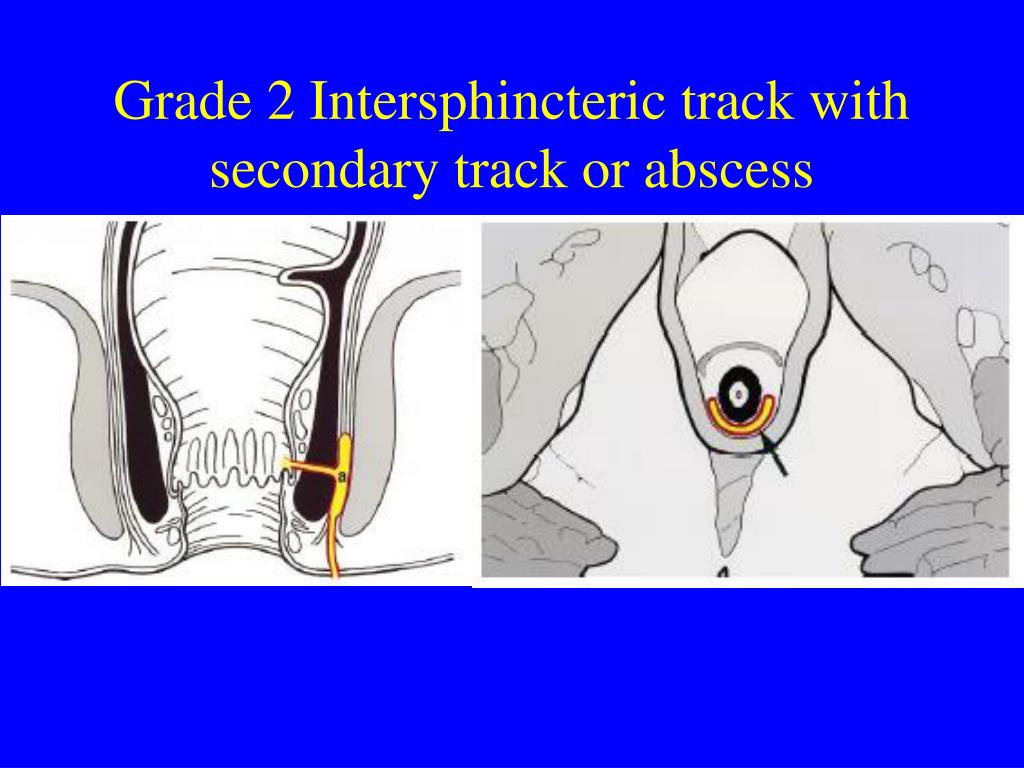 Grade 2 Intersphincteric track with secondary track or abscess