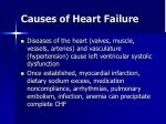causes of heart failure