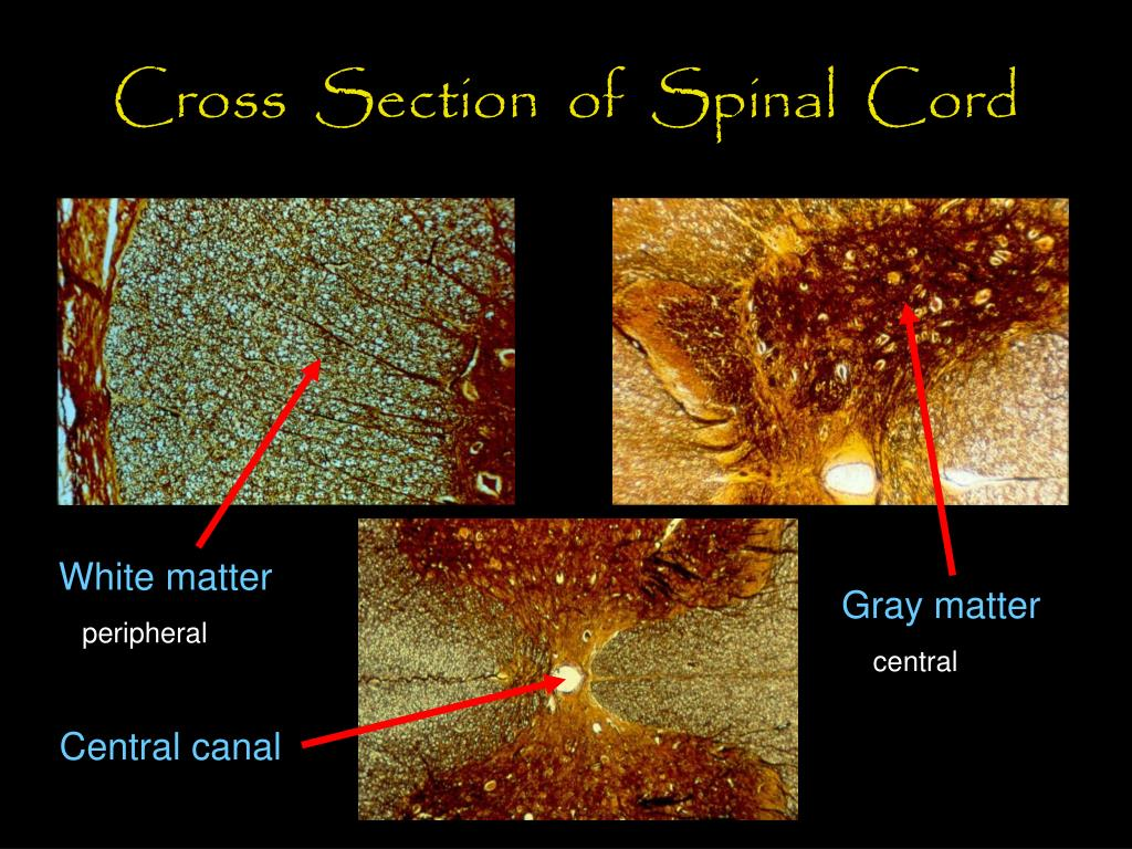 Cross  Section  of  Spinal  Cord