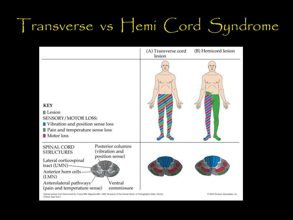 Transverse  vs  Hemi  Cord  Syndrome