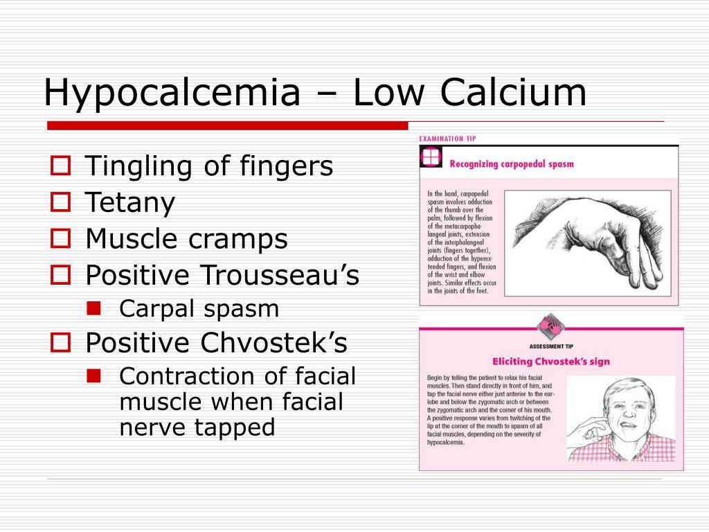 Hypocalcemia – Low Calcium