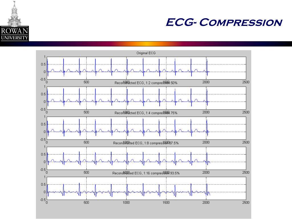 ECG- Compression