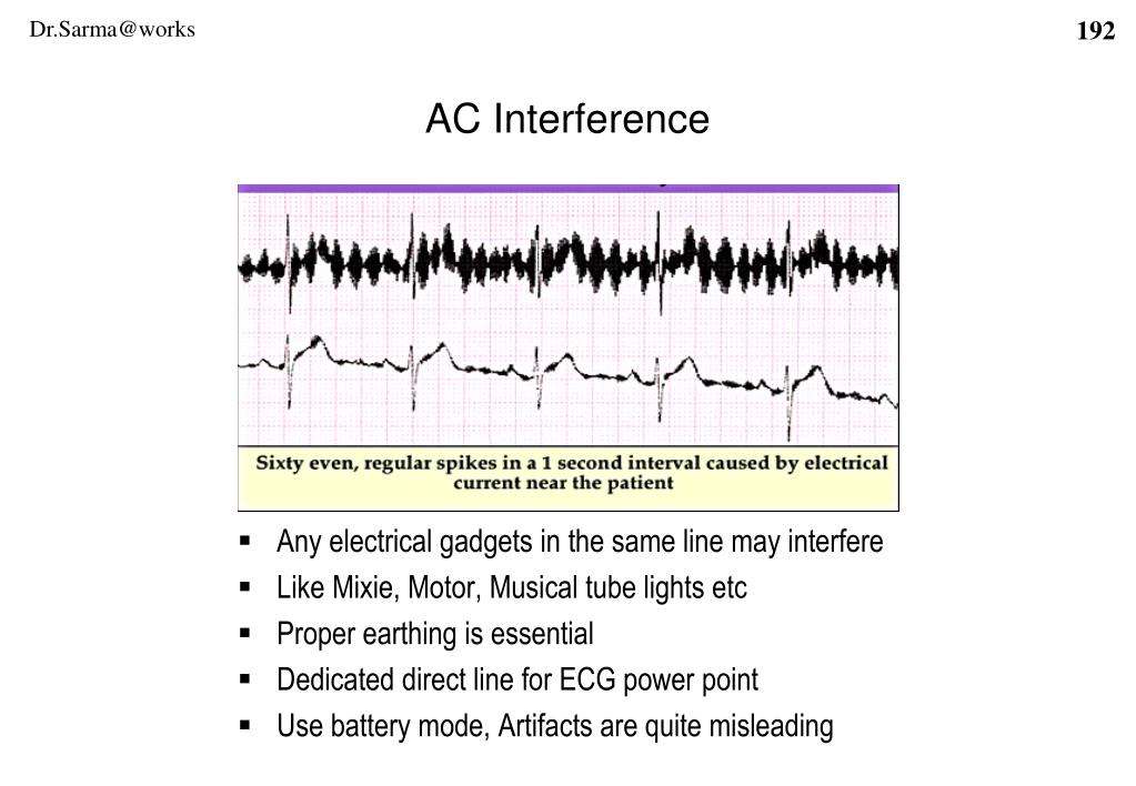 Any electrical gadgets in the same line may interfere