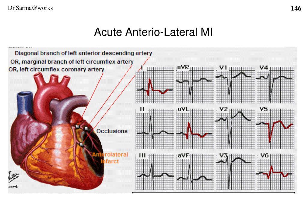 Acute Anterio-Lateral MI