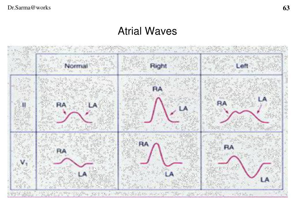 Atrial Waves