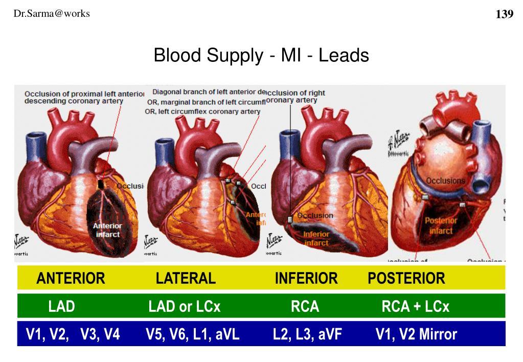 Blood Supply - MI - Leads