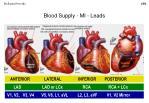 blood supply mi leads