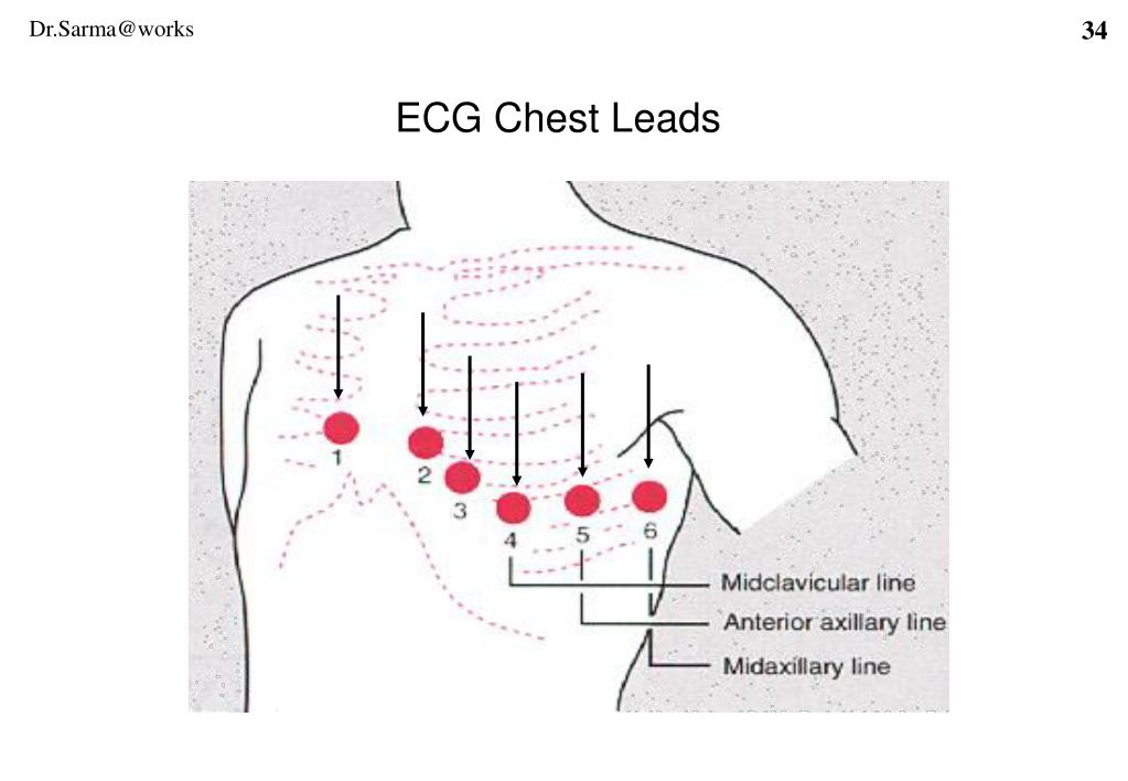 ECG Chest Leads