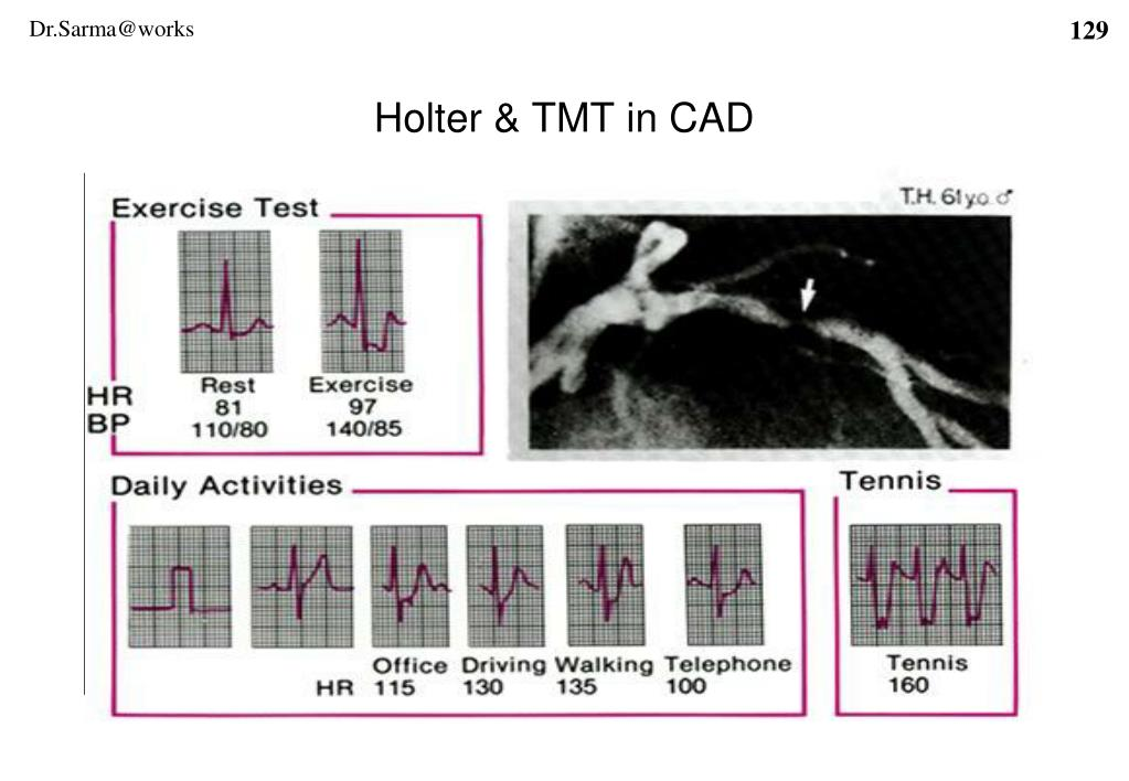Holter & TMT in CAD