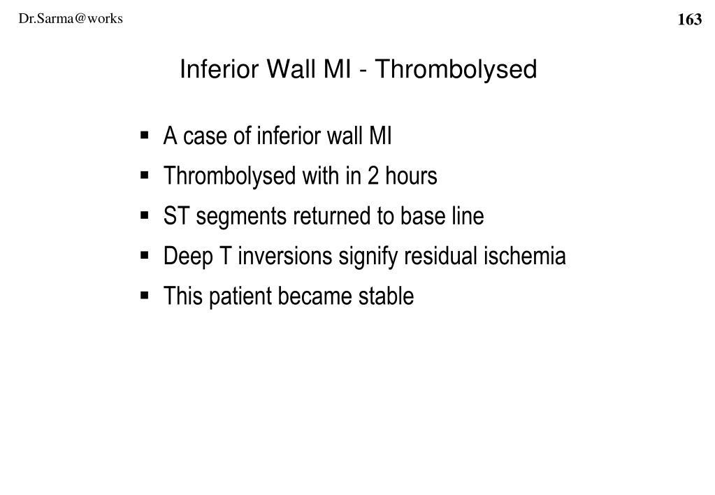 Inferior Wall MI - Thrombolysed