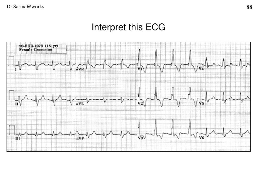 Interpret this ECG