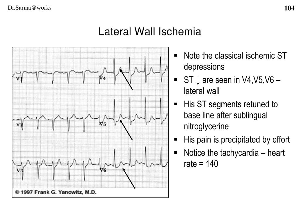 Note the classical ischemic ST depressions