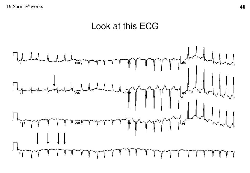 Look at this ECG