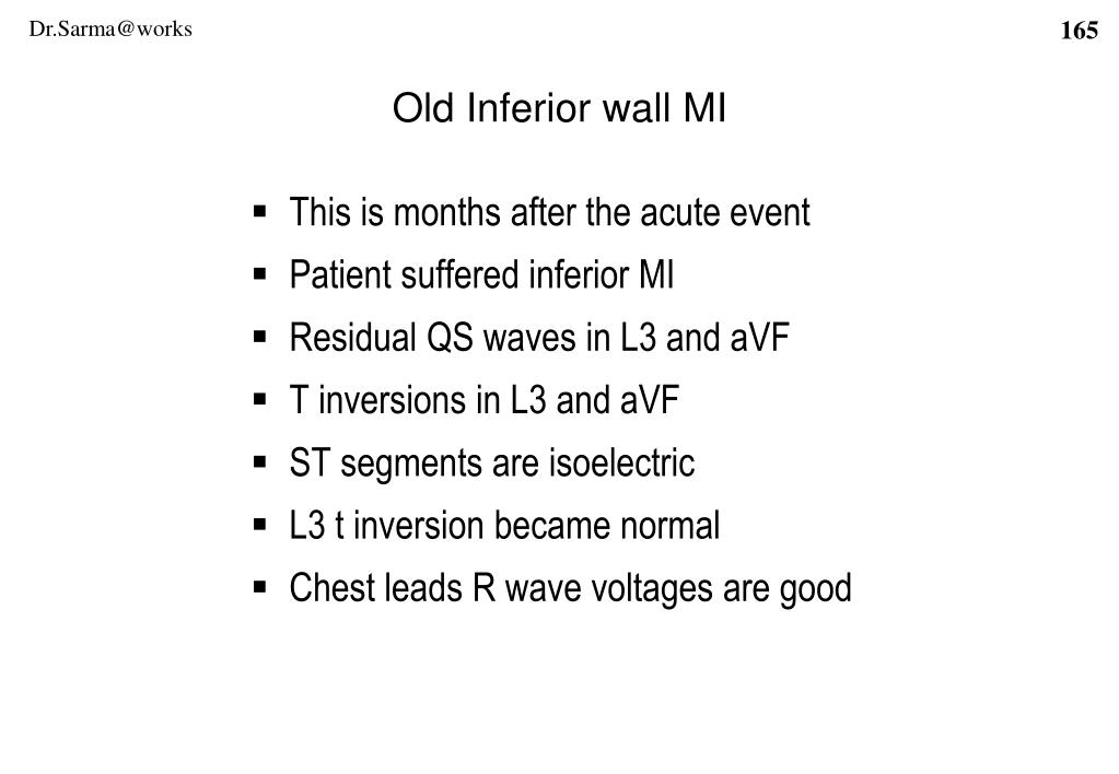 Old Inferior wall MI