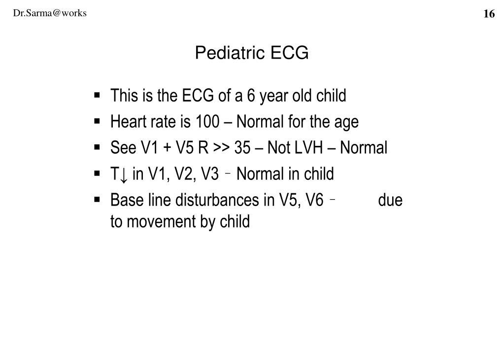 Pediatric ECG