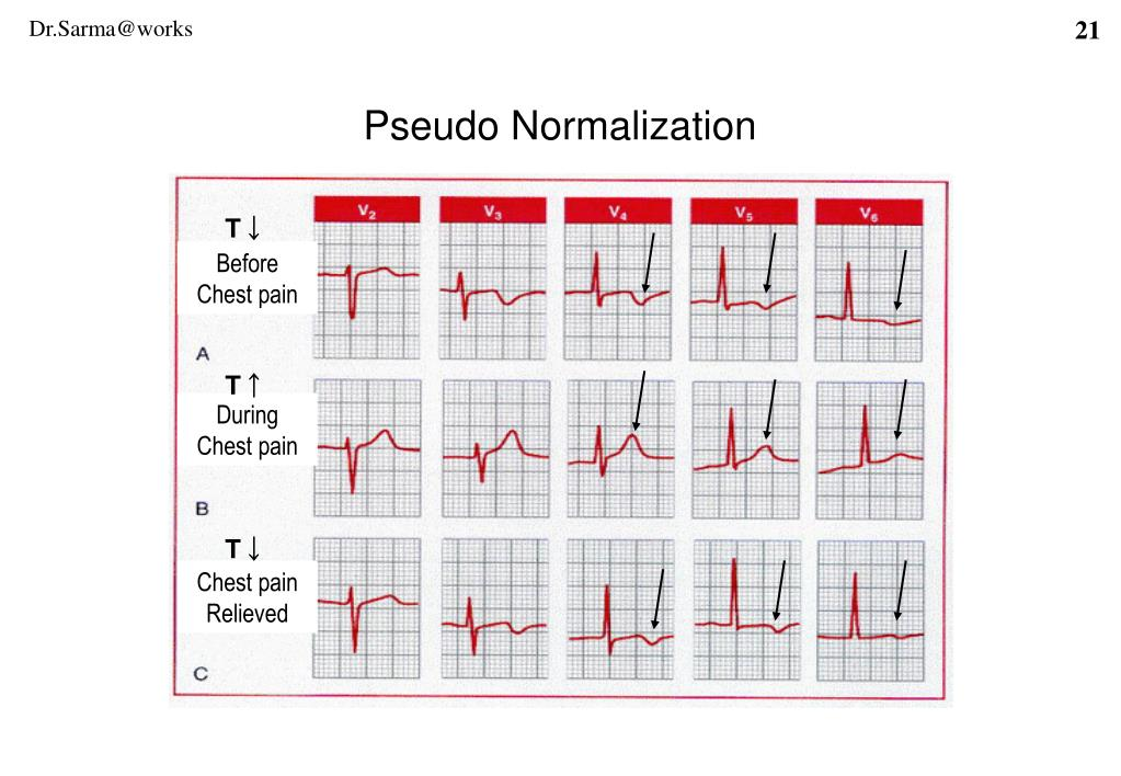 Pseudo Normalization
