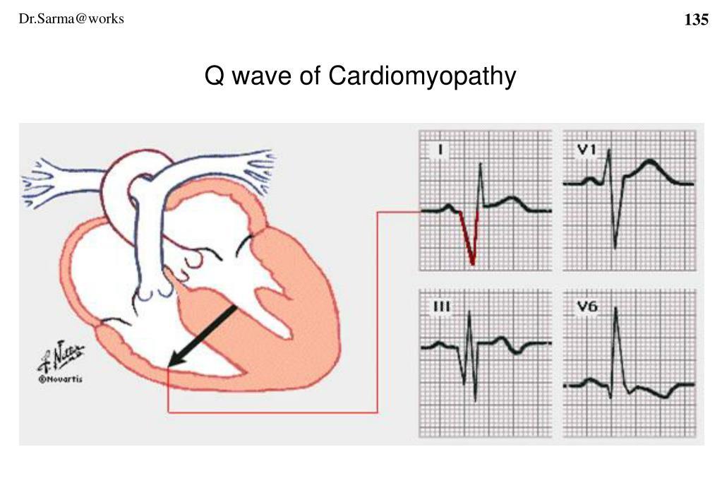 Q wave of Cardiomyopathy