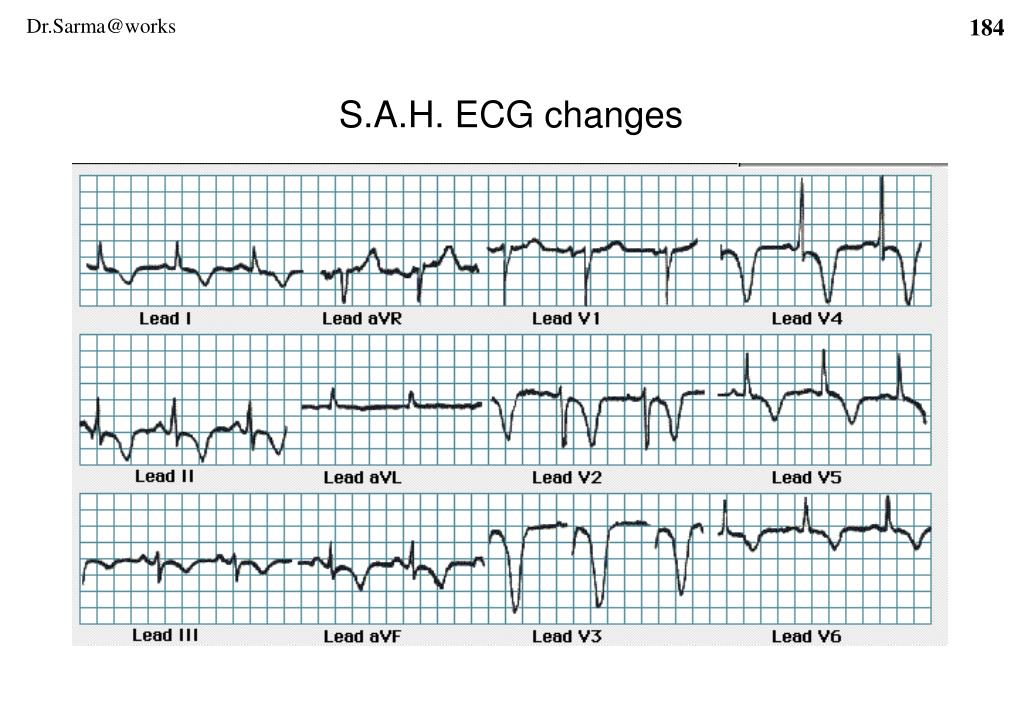 S.A.H. ECG changes