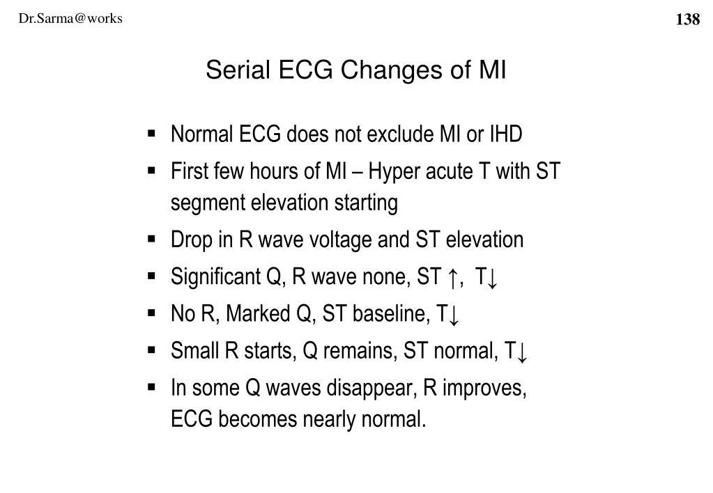 Serial ECG Changes of MI