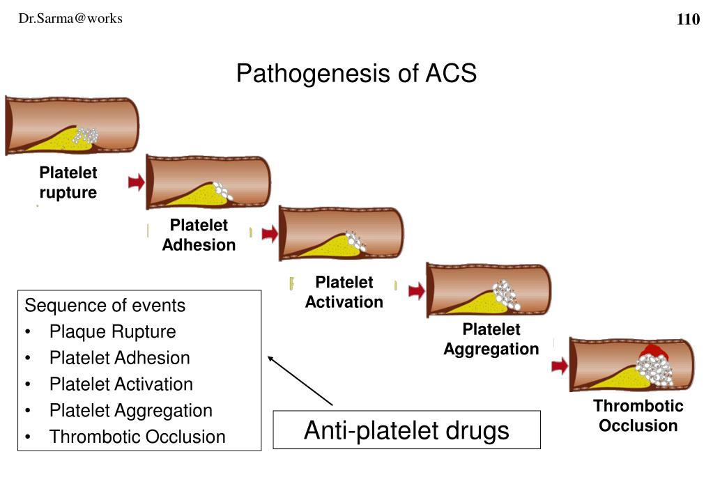 Pathogenesis of ACS