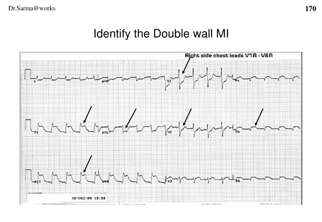 Identify the Double wall MI