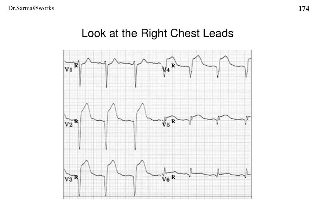 Look at the Right Chest Leads