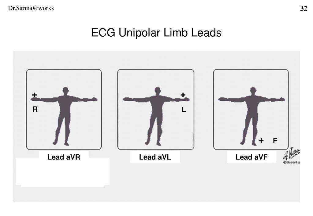 ECG Unipolar Limb Leads
