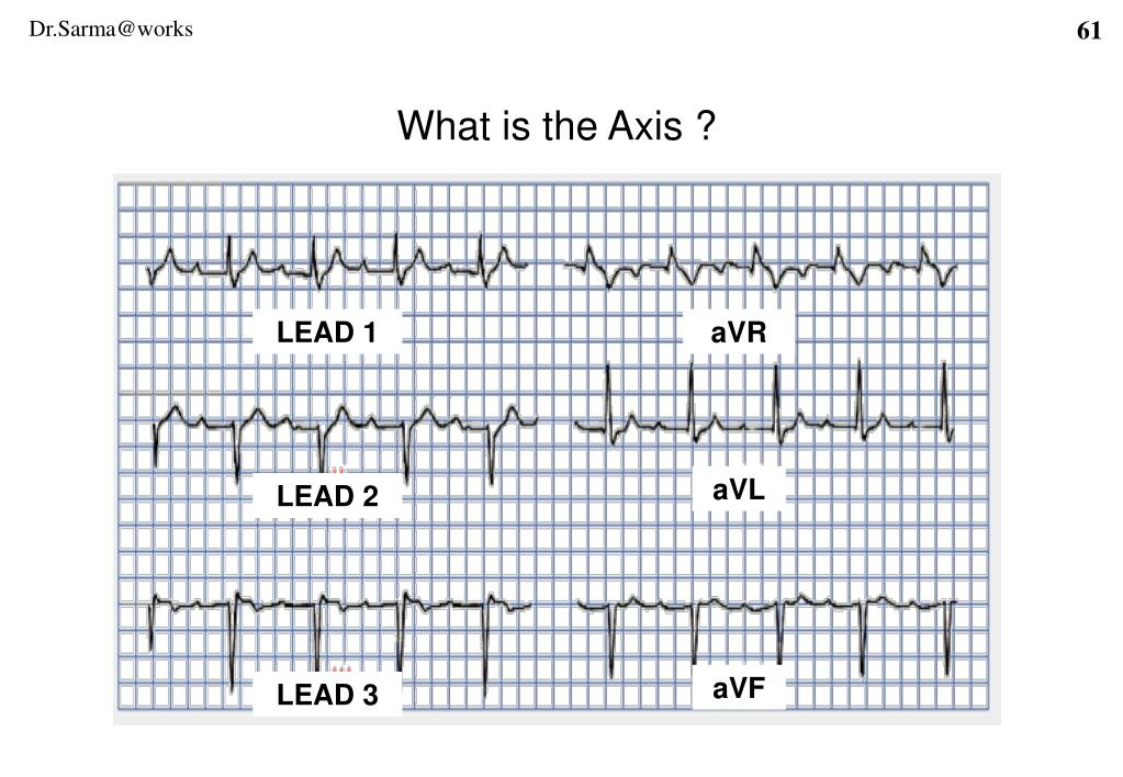 What is the Axis ?