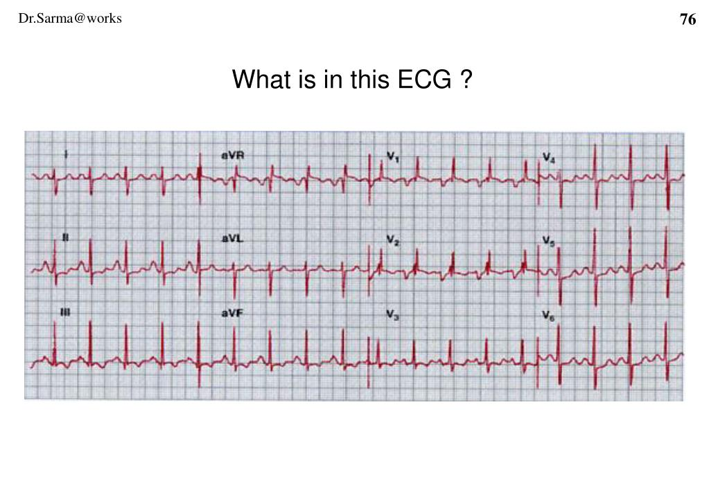 What is in this ECG ?