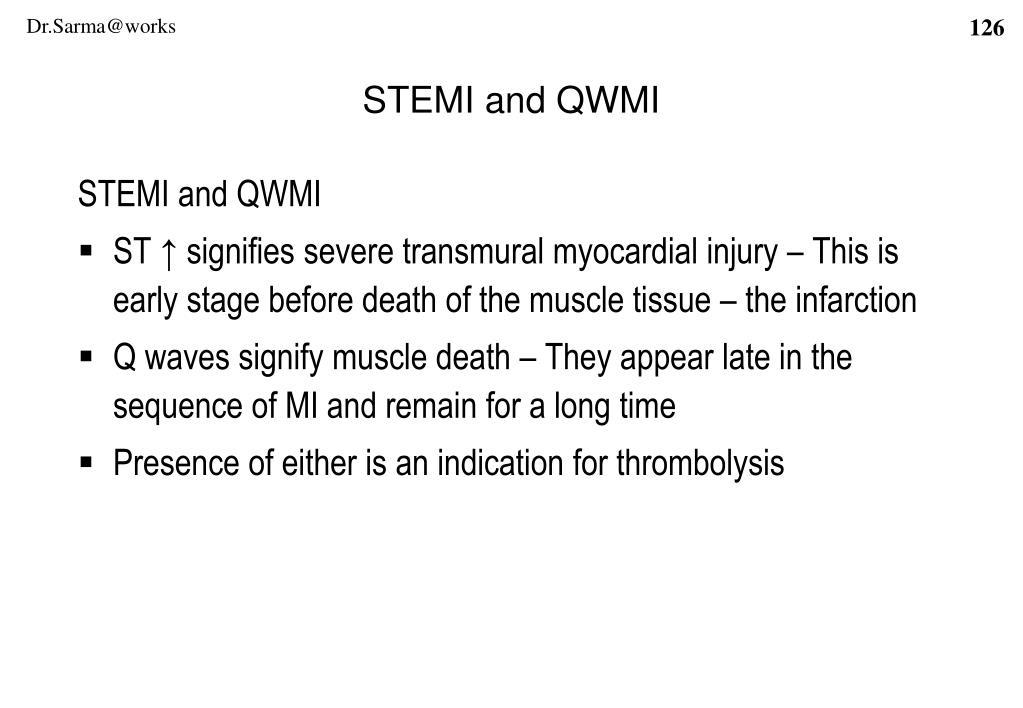 STEMI and QWMI