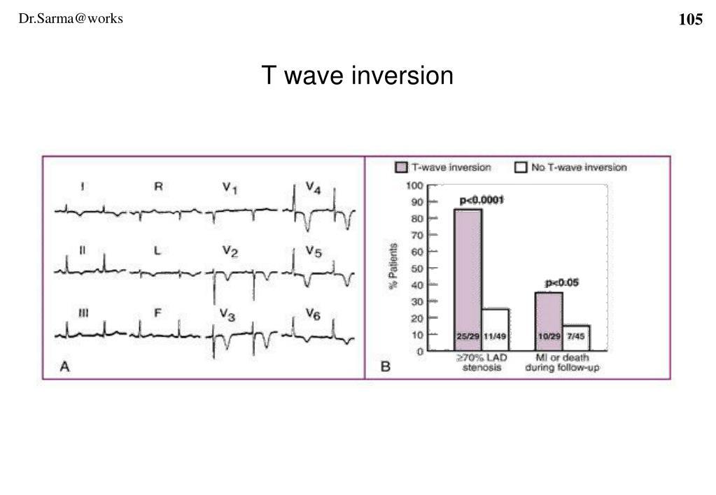 T wave inversion