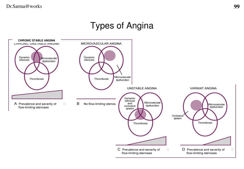 Types of Angina