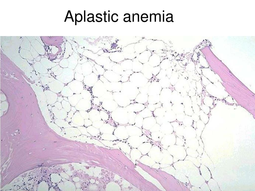 the clinical description of aplastic anemia Aplastic anemia final  clinical features mouth infection, sore throat ( mucositis) ulcers of : mouth & throat,  final anemia aplastic.