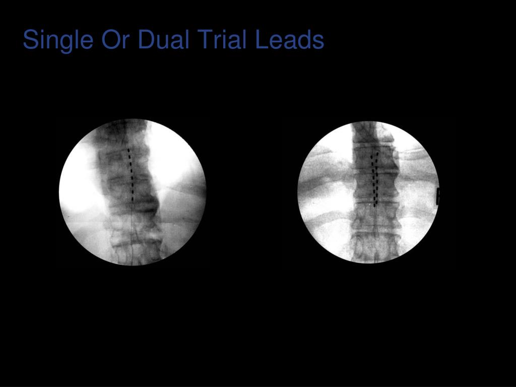 Single Or Dual Trial Leads