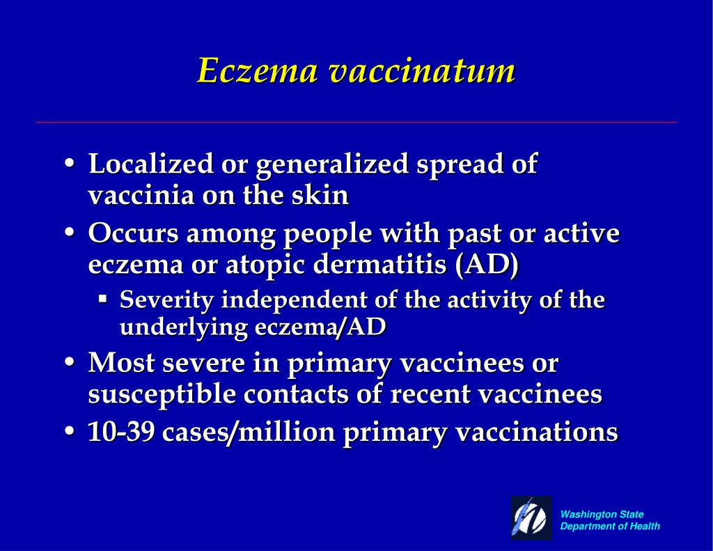 Eczema vaccinatum