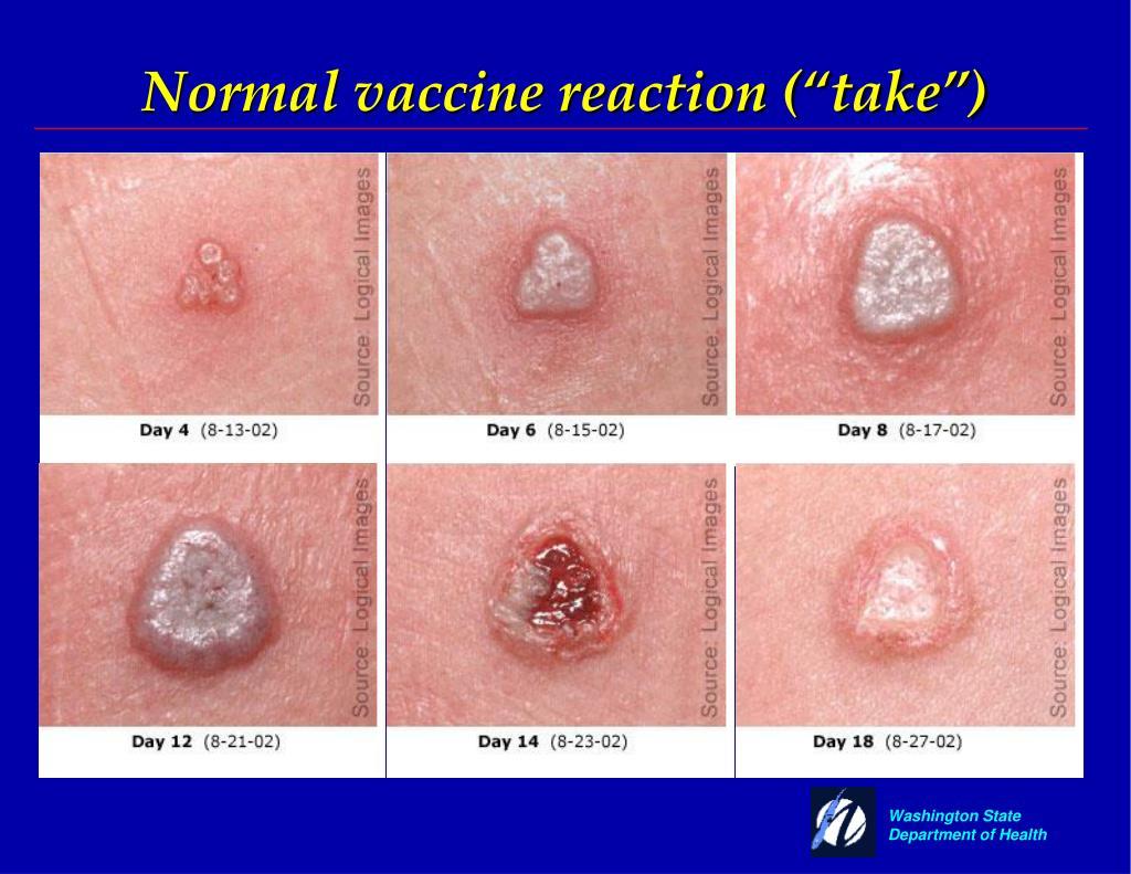 "Normal vaccine reaction (""take"")"
