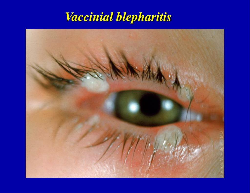 Vaccinial blepharitis