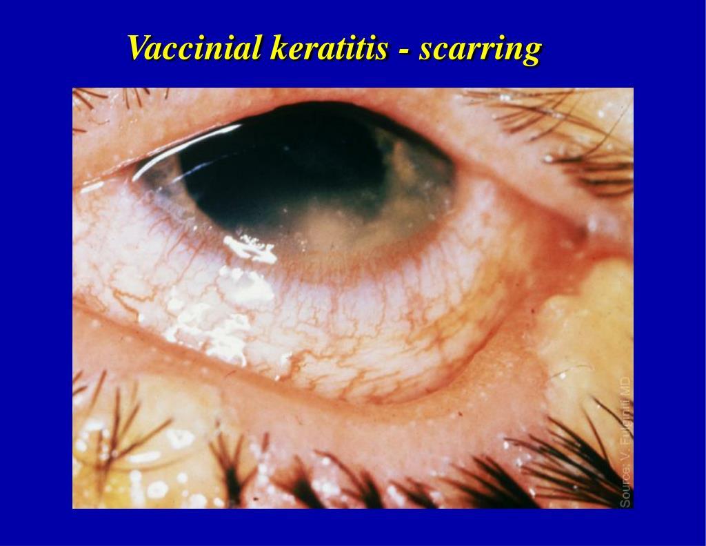 Vaccinial keratitis - scarring
