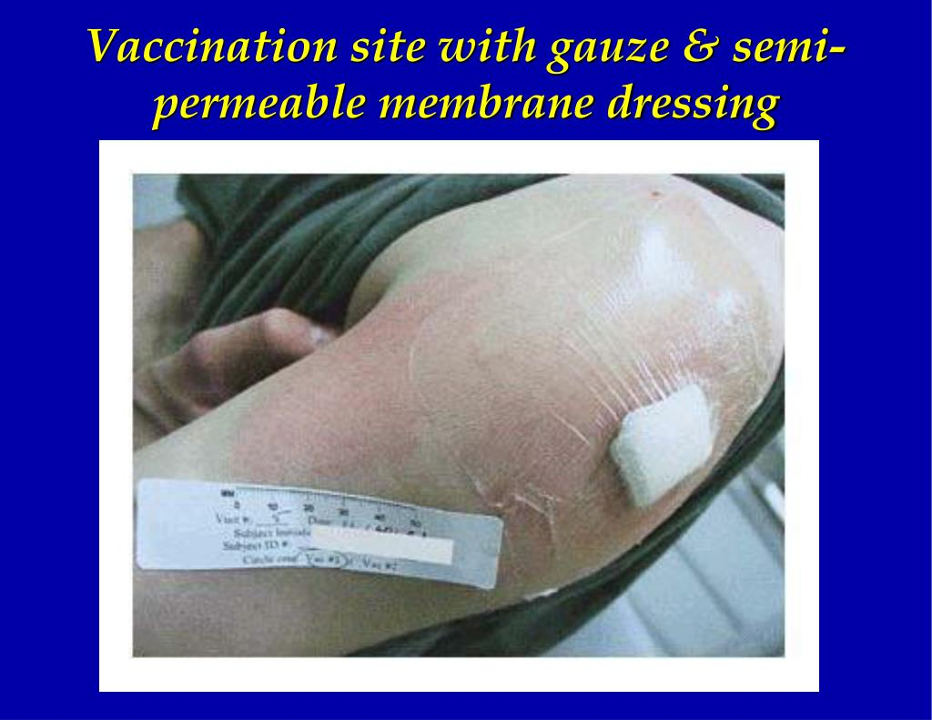 Vaccination site with gauze & semi-permeable membrane dressing