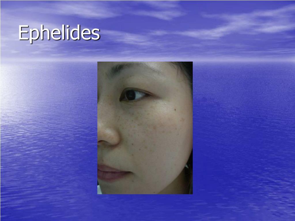 Ephelides