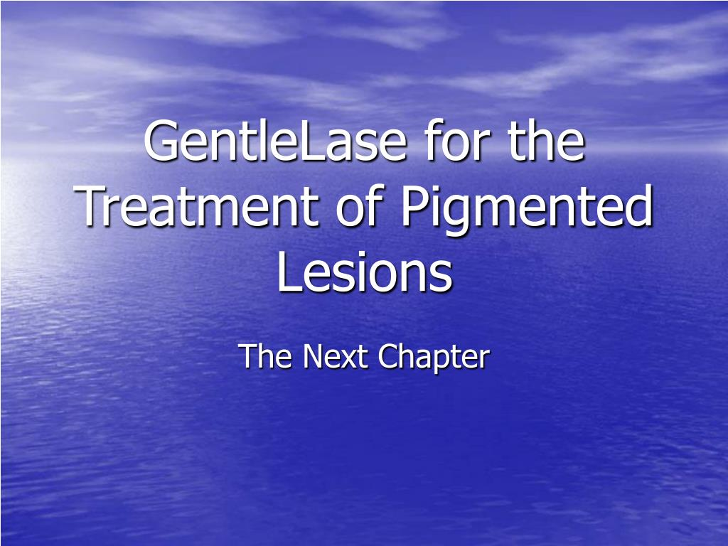 GentleLase for the Treatment of Pigmented Lesions