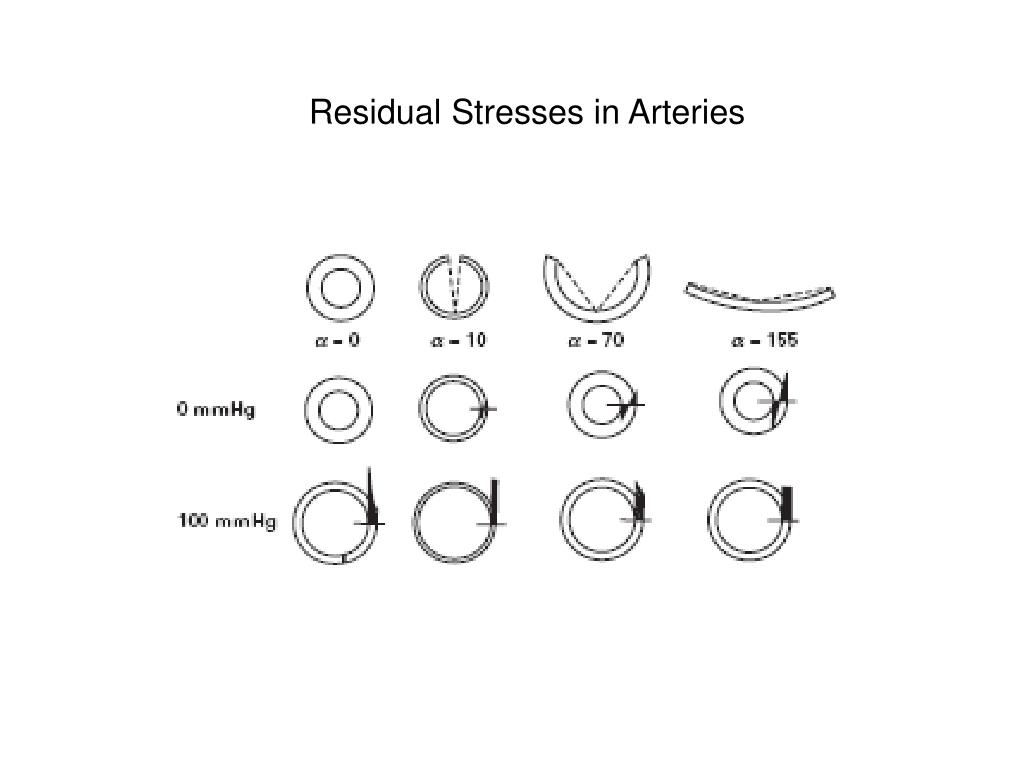 Residual Stresses in Arteries
