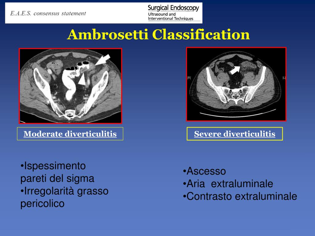 Ambrosetti Classification
