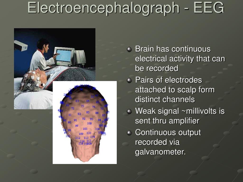 Electroencephalograph - EEG