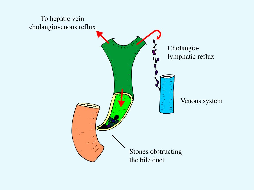 To hepatic vein cholangiovenous reflux
