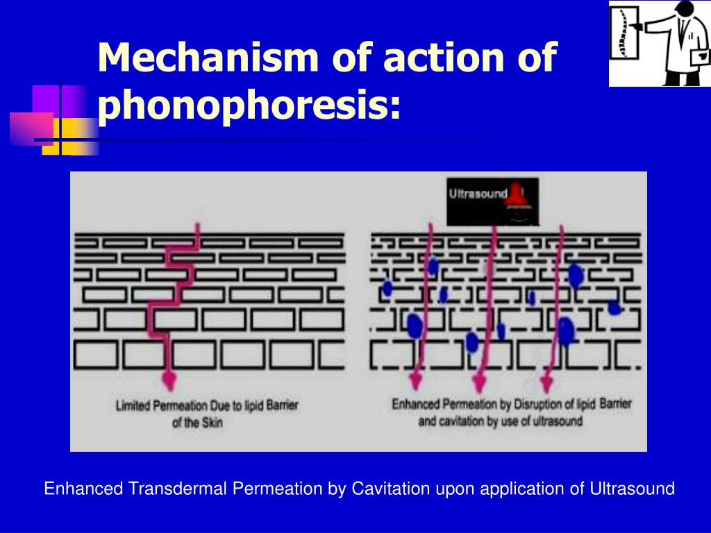 Mechanism of action of phonophoresis: